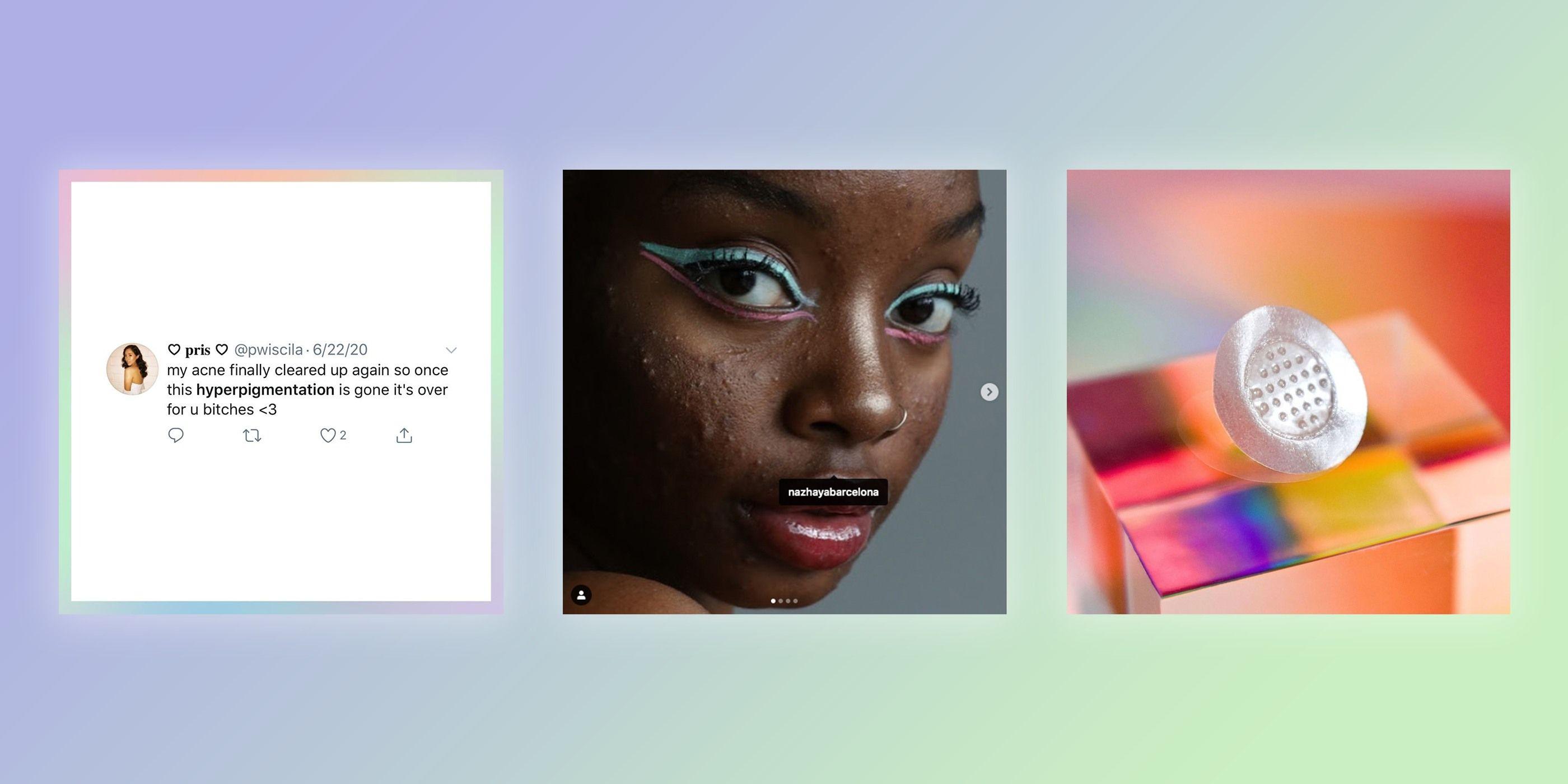 ZitSticka Talks Navigating Social Media and Beauty Standards
